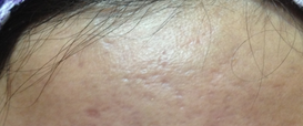Acne Scarring Dermapen Microneedling Therapy in Exmouth