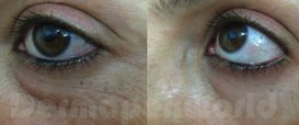 Fine Lines and Wrinkles Collagen Induction Therapy in Exmouth