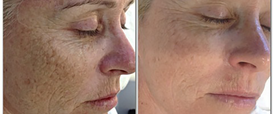 Fine Lines and Wrinkles Dermapen Microneedling Therapy in Exmouth
