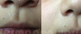 Surgical Scars Collagen Induction Therapy in Exmouth