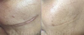 Surgical Scars Dermapen Microneedling Therapy in Exmouth